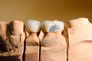 cracked teeth treatment cambie