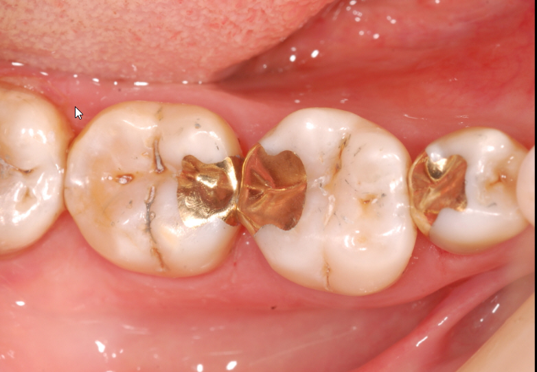 gold-fillings-before
