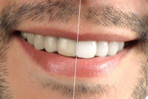 teeth whitening cambie