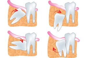 wisdom-teeth cambie