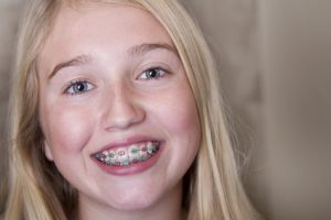 braces for kids in cambie