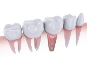 dental implant cambie