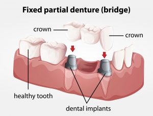 Fixed partial denture bridge | cambie dentist