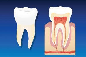 root canal treatment cambie
